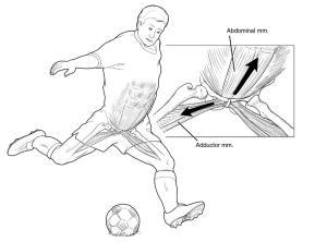 Pubalgia y Fisioterapia