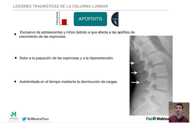 Lesiones traumáticas en zona lumbar
